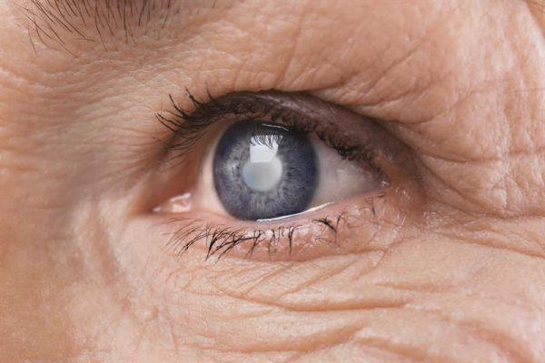 bệnh mắt người già
